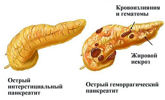 Psevdotumoroznyj-pankreatit.jpg
