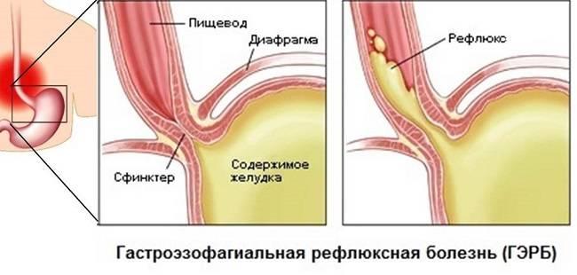 Gastroezofagealnyj-reflyuks-u-detej.jpg