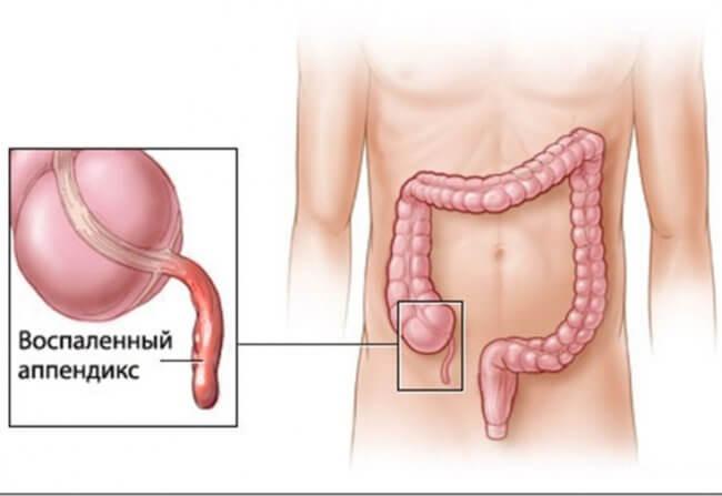 appenditsit-prichiny-i-simptomy-kotorye-nelzya-ignorirovat-Tq1506973486-650x447.jpeg