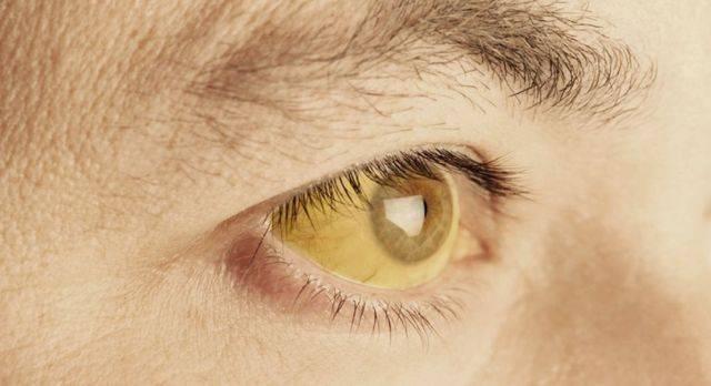 simptomy-bolezni-pecheni-u-muzhchin-4.jpg