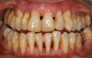 parodontoz-1-300x188.jpg