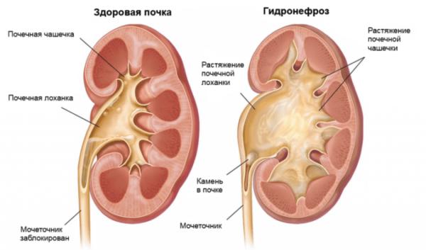 Gidronefroz-odno-iz-rasprostranennyih-zabolevaniy-mochevyivodyashhey-sistemyi-600x353.png