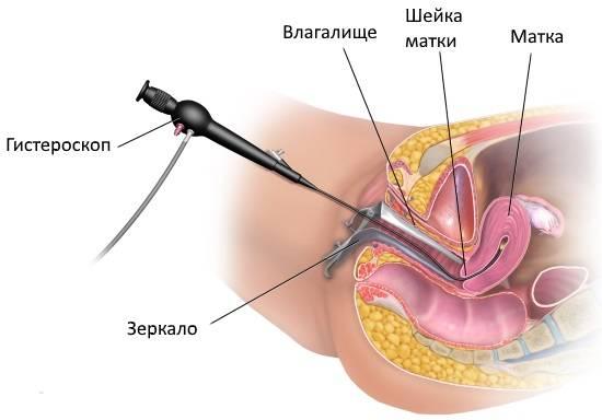bolevoj-sindrom-posle-gisteroskopii.jpg