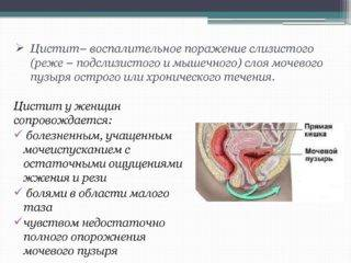 ne-prohodyat-simptomi-tsistita-320x240.jpg
