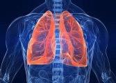 1516272741_tuberkulez-167x120.jpg