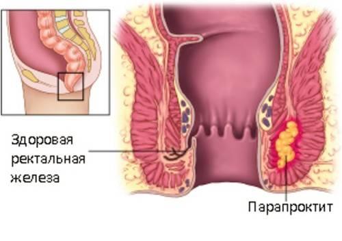 paraproktit_u_rebenka_1-500x352.jpg