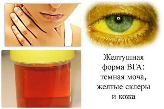 priznaki-gepc-4-550x366.jpg