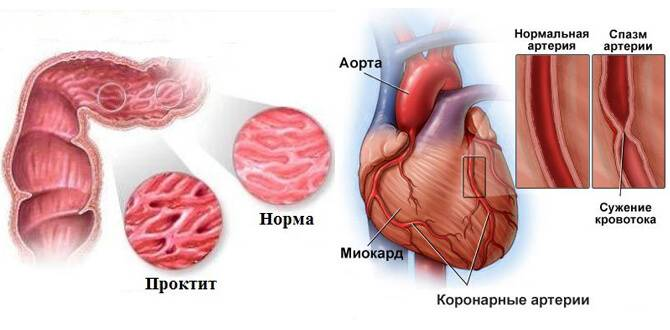 Проктит-спазм-артерий.jpg