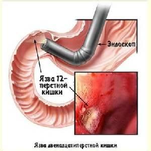 Simptomy-i-metody-lecheniya-yazvy-dvenadtsatiperstnoj-kishki-2.jpg