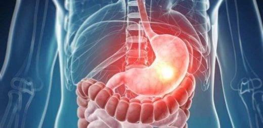 stomach-health-e1460032546425-2048x1000_c-520x254-550x310.jpg