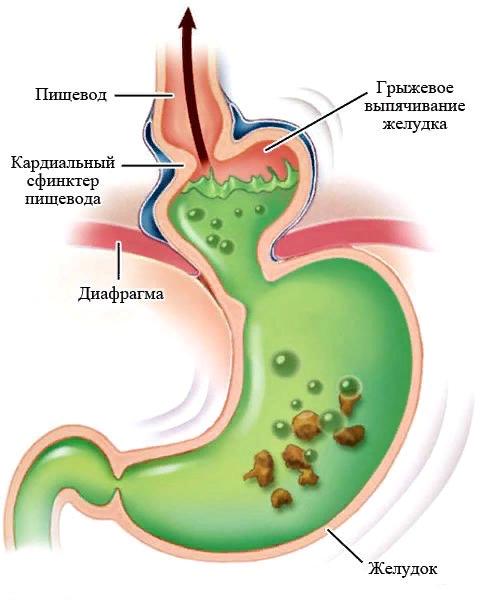 gryzha-zheludka2.png