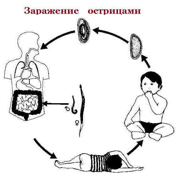 Enterobioz-zarazhenie.jpg