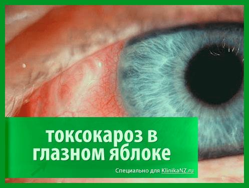 toksokaroz-4.png
