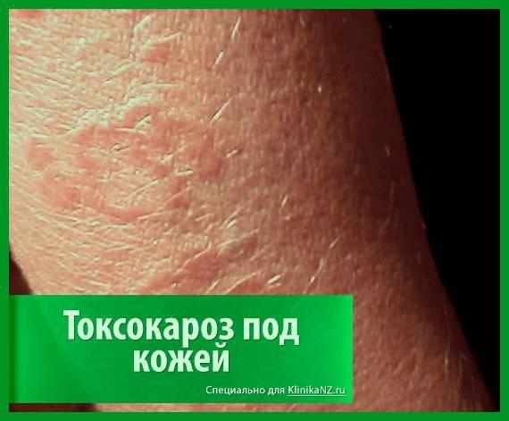toksokaroz-5.png