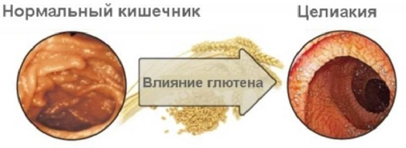 CHto-takoe-tseliakiya-i-kak-ee-opredelit-2.jpg