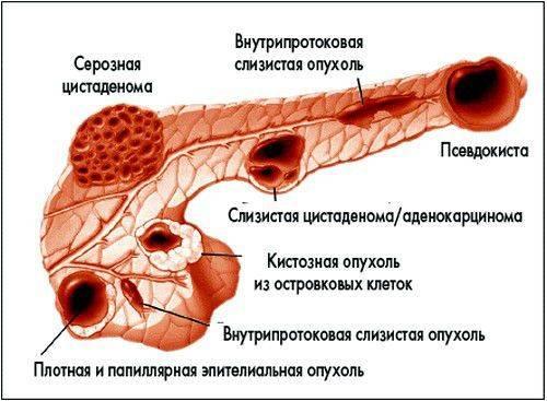 simptomy-bolpodzhelzhen-6-500x367.jpg