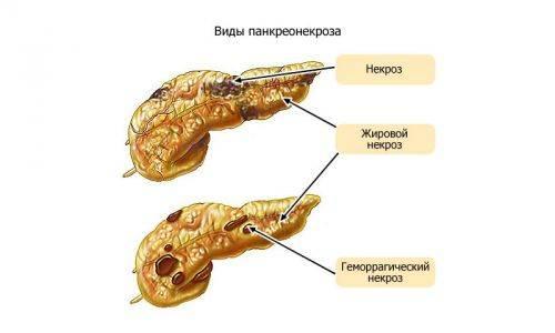 simptomy-bolpodzhelzhen-7-500x300.jpg