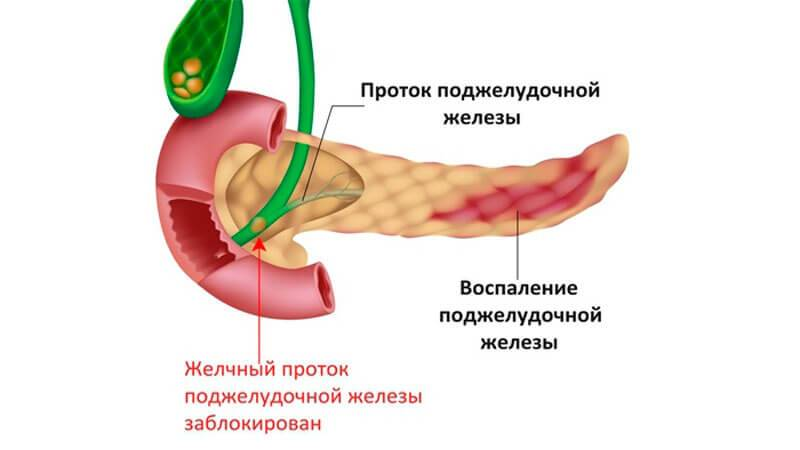 vospalenie-podzheludochnoy-zhelezy-simptomy-i-lechenie.jpg