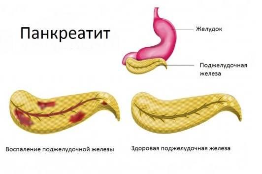 Pankreatit-chto-eto.jpg