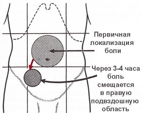 appendicit.jpg