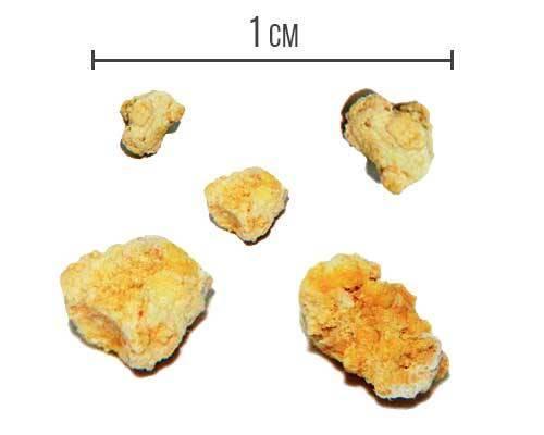 slyunnokamennaya-bolezn-lechenie-sialolitiaza-1.jpg