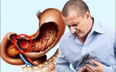 Gastroenterit-simptomy.jpg