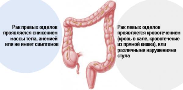 Simptomyi-raka-kishechnika-600x297.png