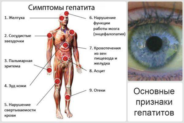 Osnovnyie-simptomyi-gepatita-600x400.jpg
