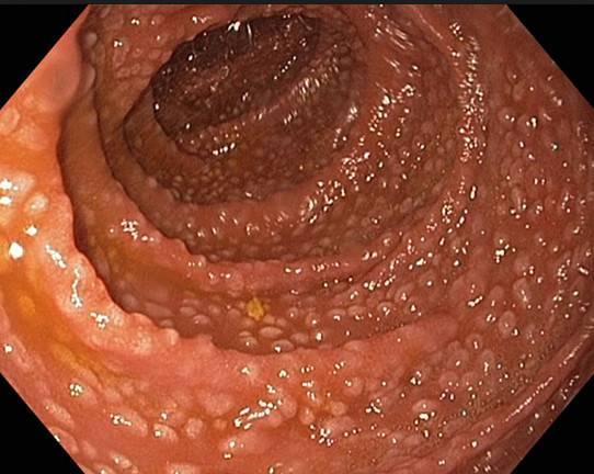 очаговая-гиперплазия.jpg