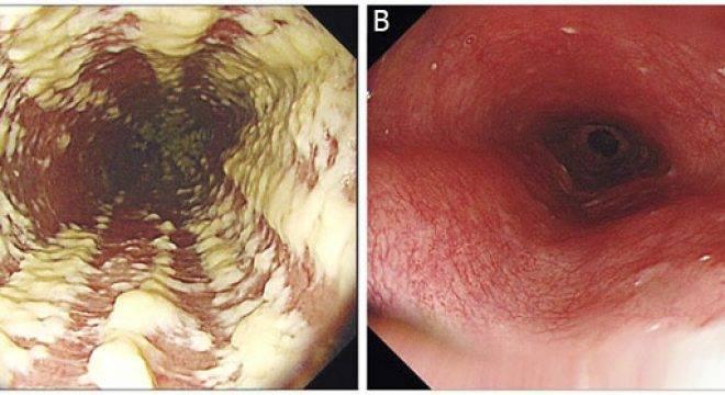 obzor-kandidoznogo-ezofagita-simptomy-diagnostika-i-lechenie-5-660x360.jpg