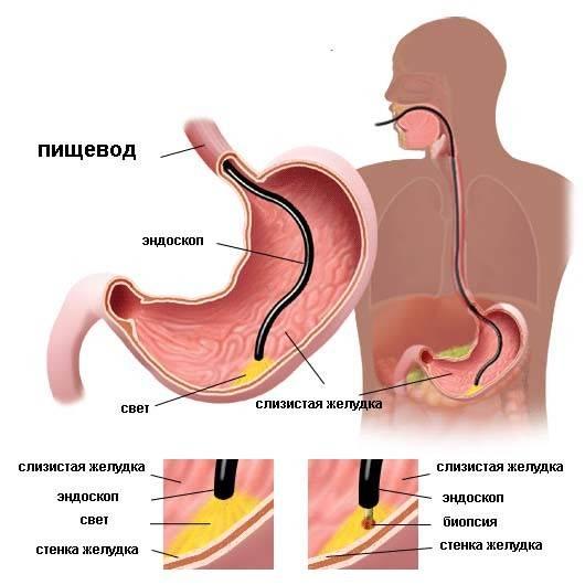 provedeniye-fibrogastroskopii.jpg