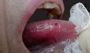 Травма-языка-300x177.jpg