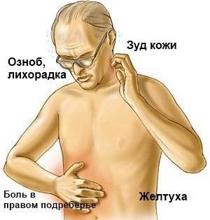 simptomy-xolangita.jpg