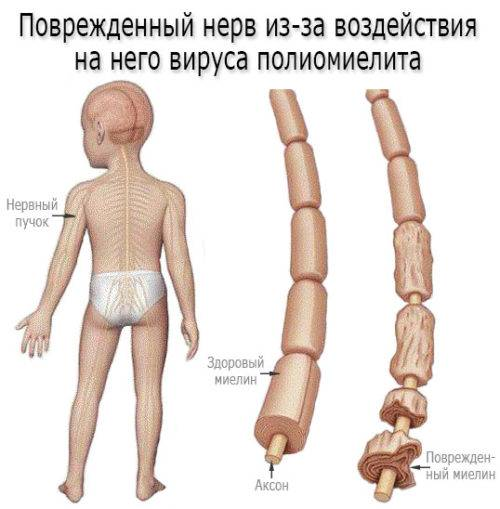 poliomielit_razvitie_bolezni-500x509.jpg