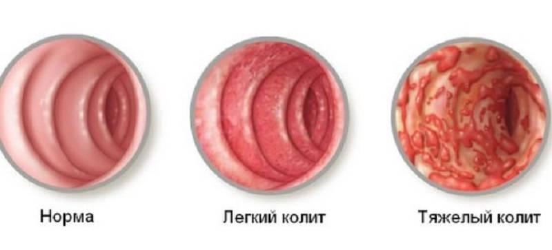 CHem-opasen-hronicheskij-yazvennyj-kolit-5.jpg
