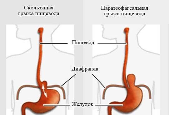 Skolzyashhaya-gryzha-pishhevodnogo-otverstiya-diafragmy.jpg