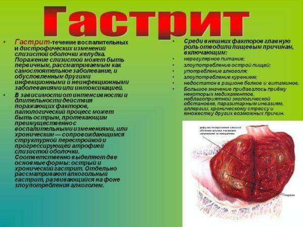 Gastrit-1-600x450.jpg