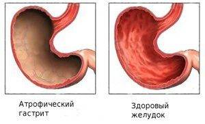 atroficheskii-gastrit47-e1501063098821-300x181.jpg