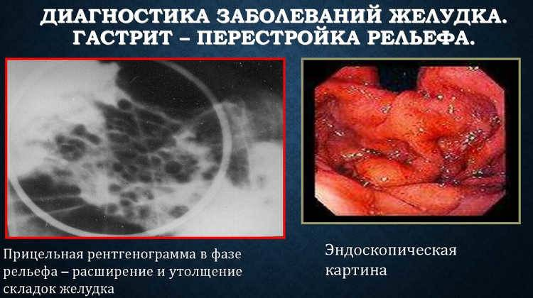диагностика-гастрита.jpg