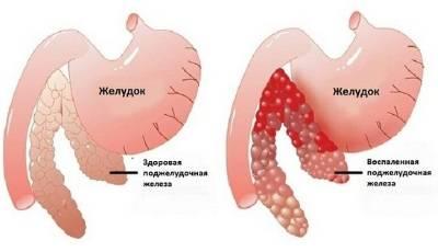 kak-lechit-pankreatit-v-domashnix-usloviyax-bystro-i-effektivno-1.jpg