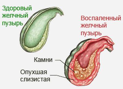 lechenie-zhelchnogo-2.png