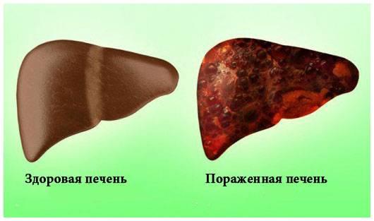pechen_zdorovay_porazgenay.jpg