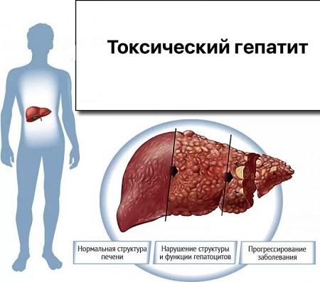 Toksicheskij-gepatit-foto.jpeg