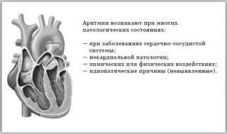 aritmiya_i_armiya-320x189.jpg