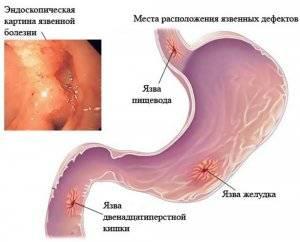 probodnaya-yazva-12-perstnoj-kishki-300x242.jpg