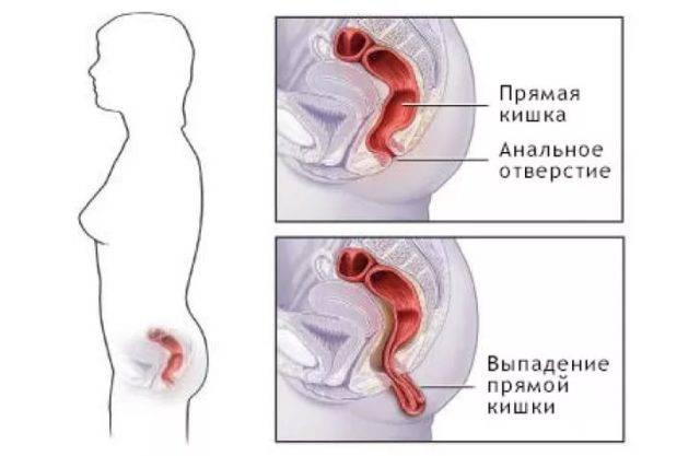 Vypadenie-pryamoj-kishki-3-1-e1504620605247.jpg