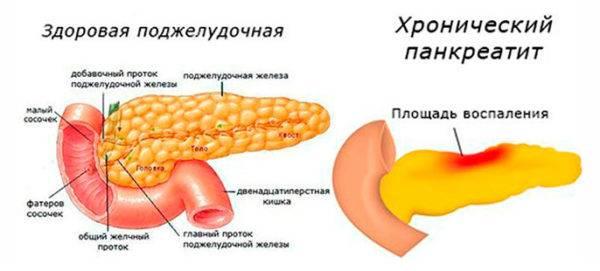 Hronicheskij-pankreatit-1-e1523089364505.jpg