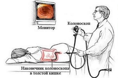 Kolonoskopija-kishechnika.jpg