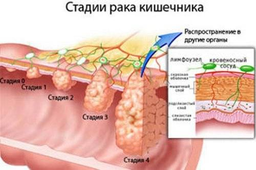Kak-proverit-kishechnik-na-onkologiju.jpg