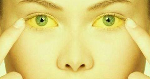 prichiny-i-simptomy-zheltuhi-480x255.jpg